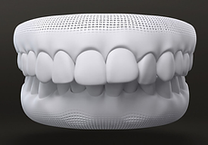Teeth style - Over bite