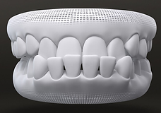 Teeth style - Under bite