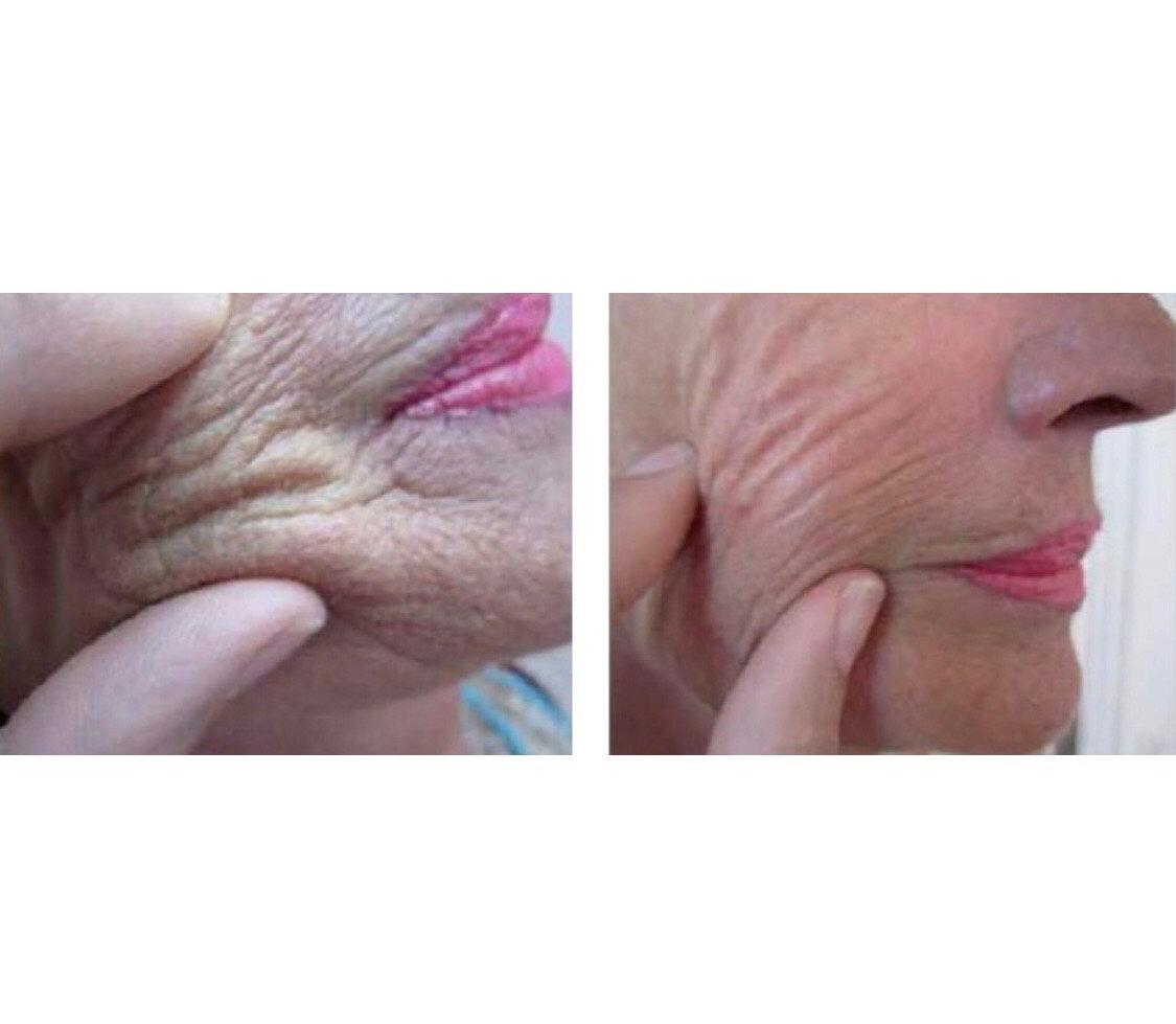 Redensity 1 Skin Booster
