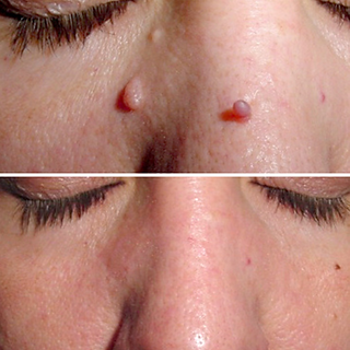 skin tag before after 4.png