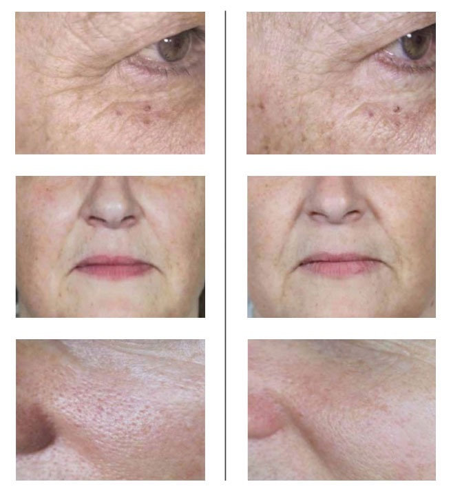 Bionutriglow Skin Rejuvenation