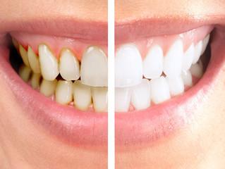 要注意!歯並びが悪くなるクセとは?