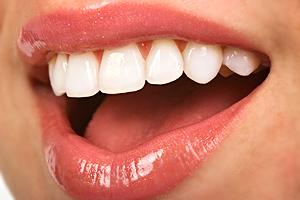 歯を磨いても白くならない?