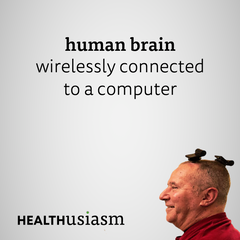 Wireless brain-computer interface