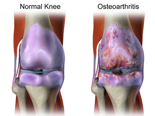 Can you run with osteoarthritis ?