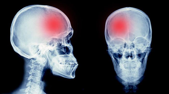 film x-ray skull of human with cerebrova