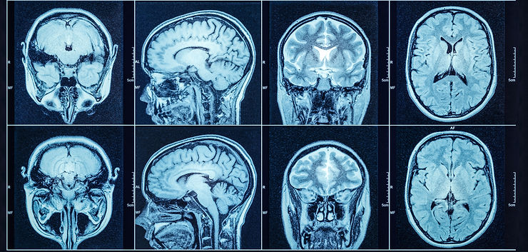 Closeup of a CT scan with brain. Medical