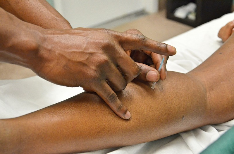 A medical professional's hands preforming dry needling on the calf of a patient.