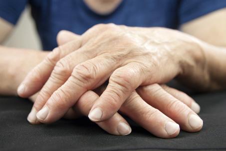 Journée mondiale de l'arthrite 12 octobre 2020