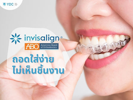 invisalign by ydc