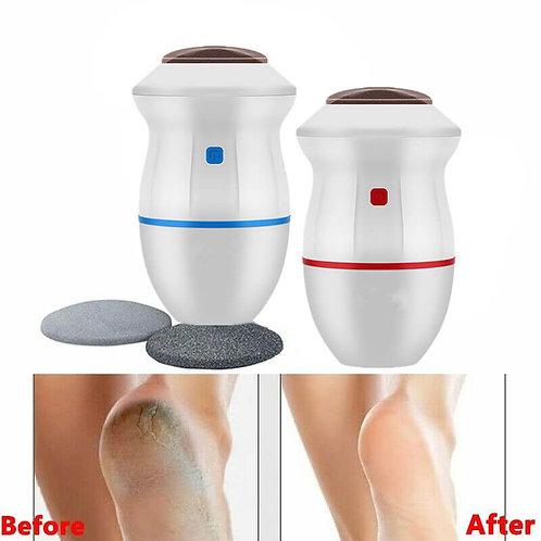 מכשיר להורדת עור יבש מכפות הרגליים