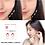 Thumbnail: מדבקות בלתי נראות למתיחת אזורי הפנים