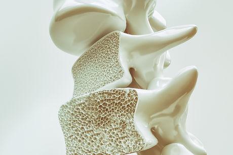 Osteoporoz-Klinik-Pilates-Adana.jpg