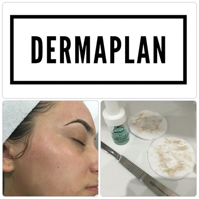 Our dermaplan, doesn't just end there, w