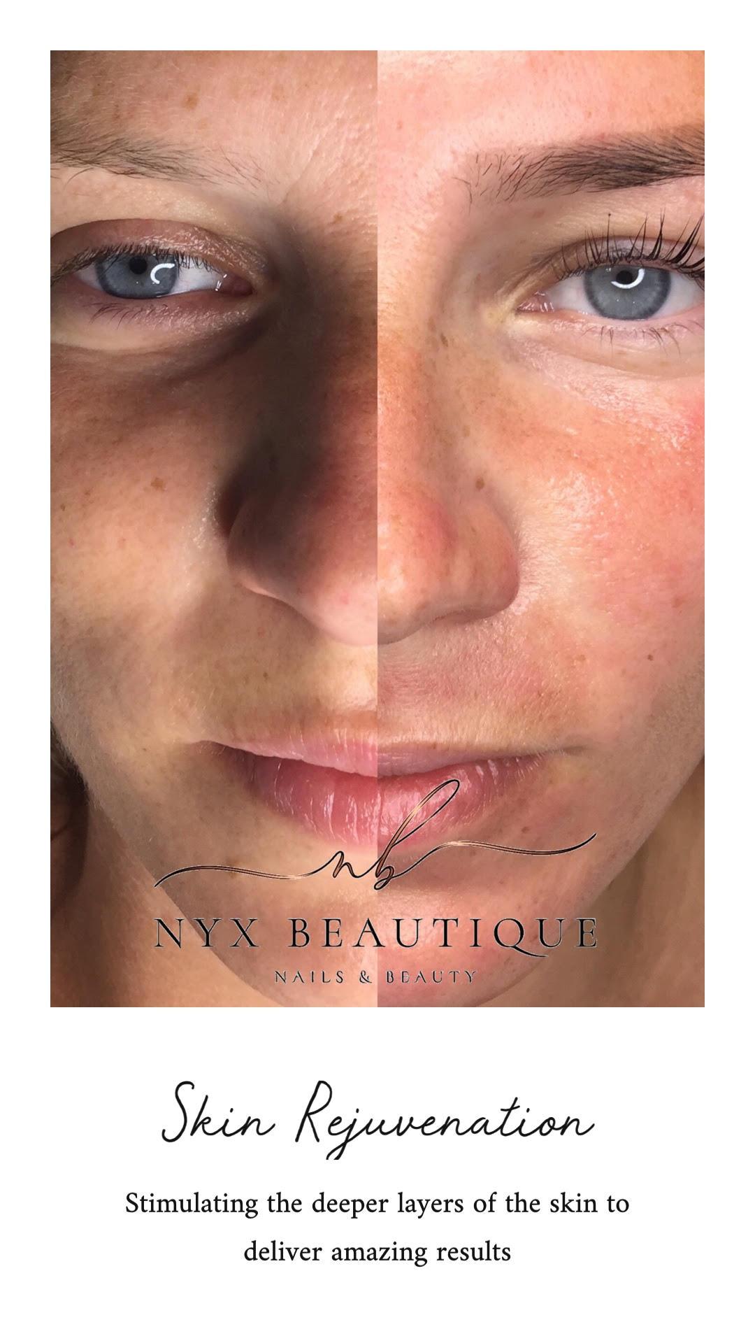 skin rejuvenation before after image