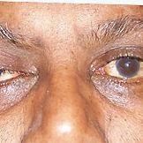 Eye-Conditions9.jpg