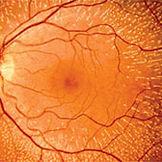Eye-Conditions12.jpg