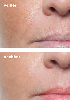 micro needling vorher nachher_d.png