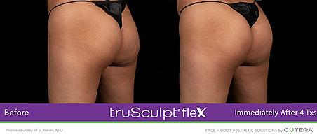 flex7.jpg