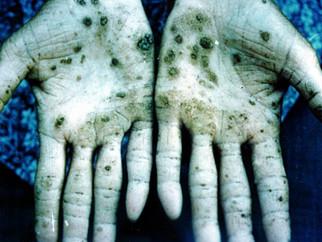 Estudo do Cetem mostra baixo risco de contaminação