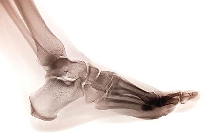 radiographie pied podiatre