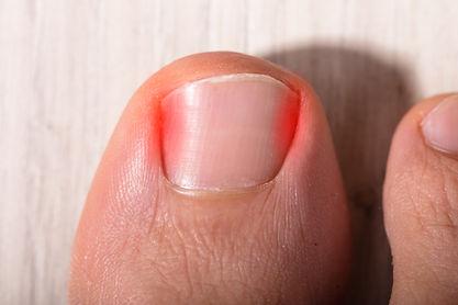 High Angle View Of Sore Toe Nail On Floo