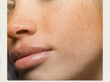 """""""How do I do makeup over my freckles?"""""""