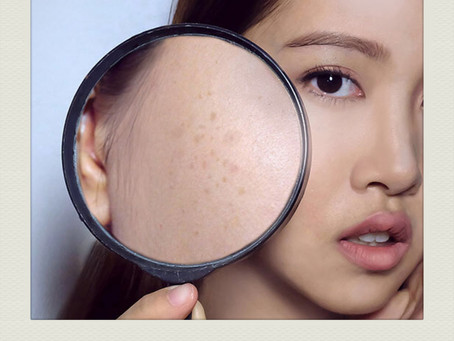 """""""How do I cover my dark/age spots?"""""""