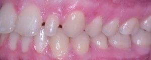 surgical-orthodontics-kingston-33.jpg