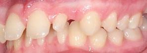 surgical-orthodontics-kingston-30.jpg