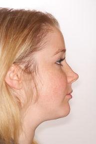 surgical-orthodontics-kingston-7.jpg
