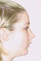surgical-orthodontics-kingston.jpg