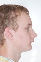 surgical-orthodontics-kingston-25.jpg
