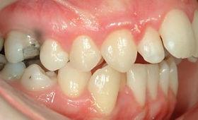 surgical-orthodontics-kingston-4.jpg