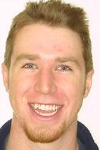 surgical-orthodontics-kingston-14.jpg
