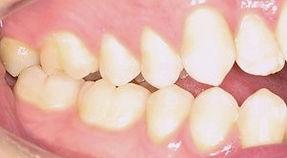 surgical-orthodontics-kingston-16_edited