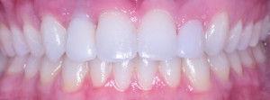 surgical-orthodontics-kingston-38.jpg