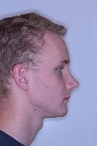 surgical-orthodontics-kingston-34.jpg