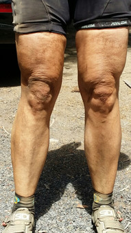 My legs after a mountain bike ride at Peterson Ridge near Sisters