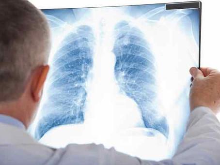 O pulmão e a síndrome de down