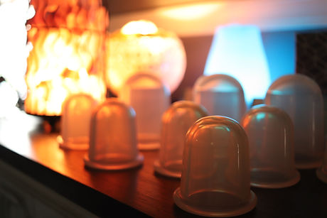 Massage Cups 3.JPG