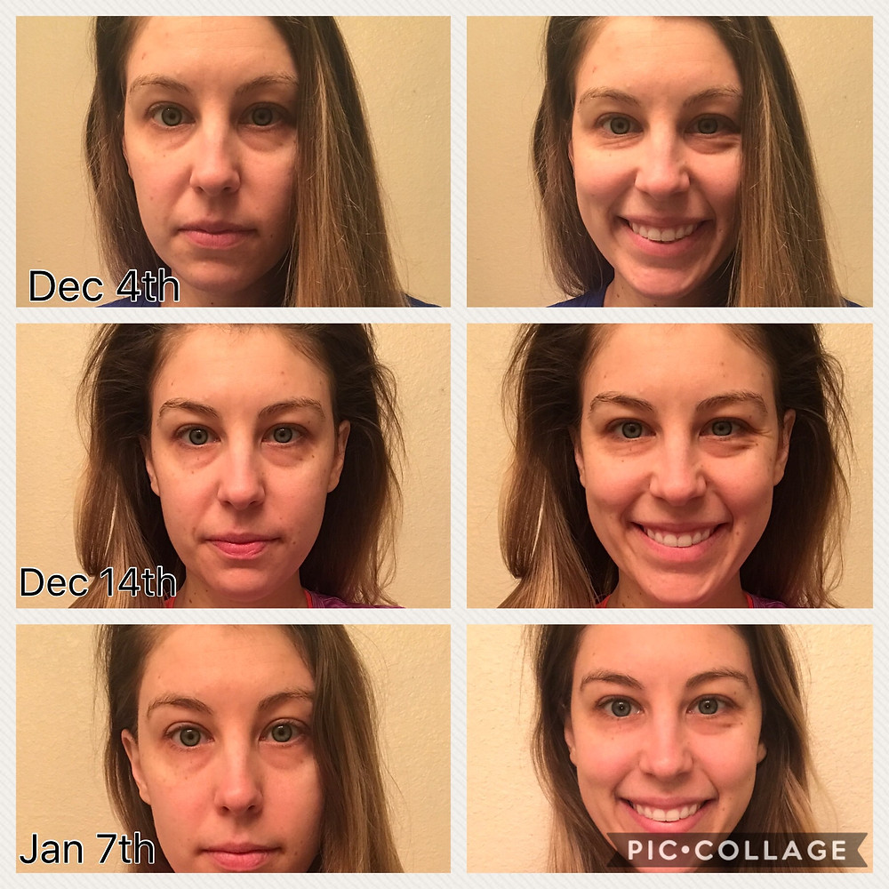 Dr. Bruner used Glutathione Plus on her face every day for a month. Here's her results.