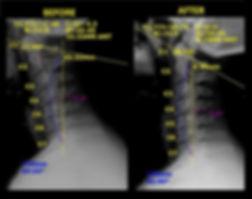 Neck Cervical Xrays.jpg