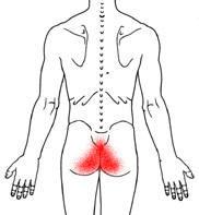 Tailbone Pain, Pain in the Butt