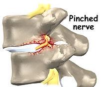 walnut_creek_chiropractor_pinched_nerve-