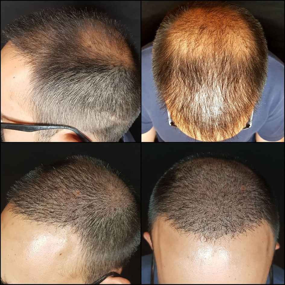 Micropigmentation / Scalp Micro