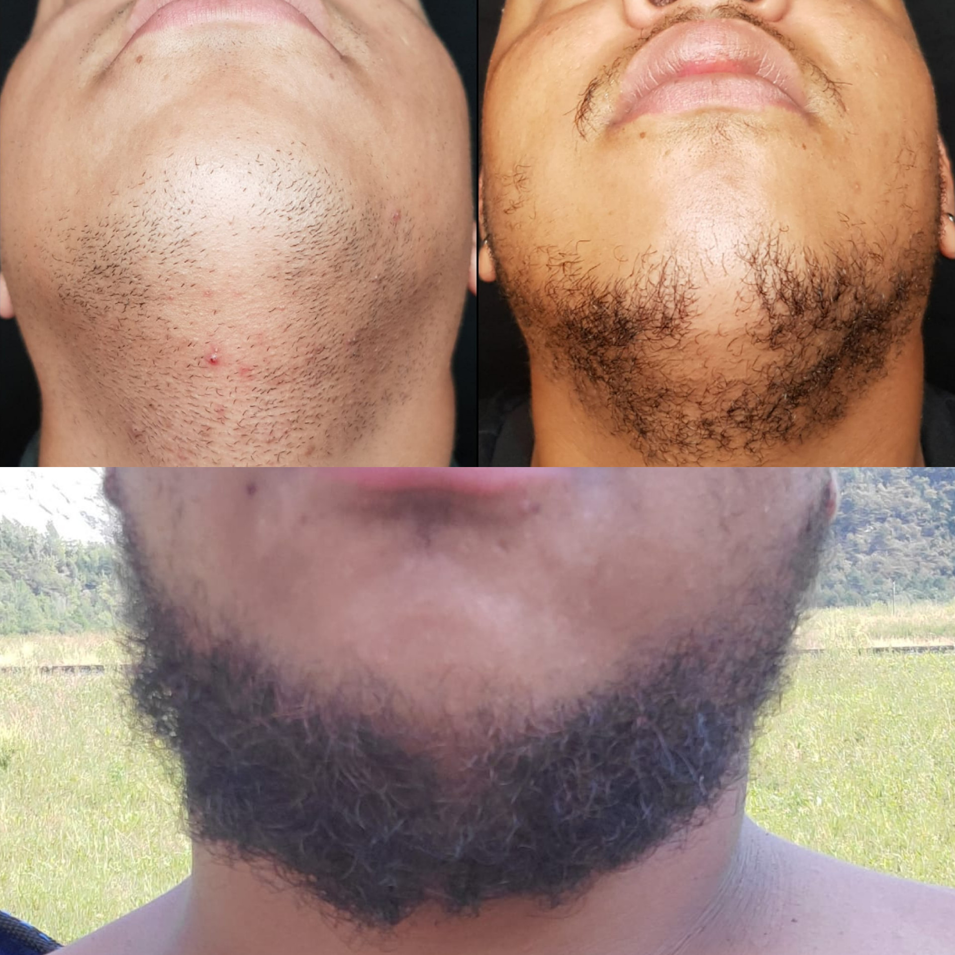 Microneedling barbe 30 min.