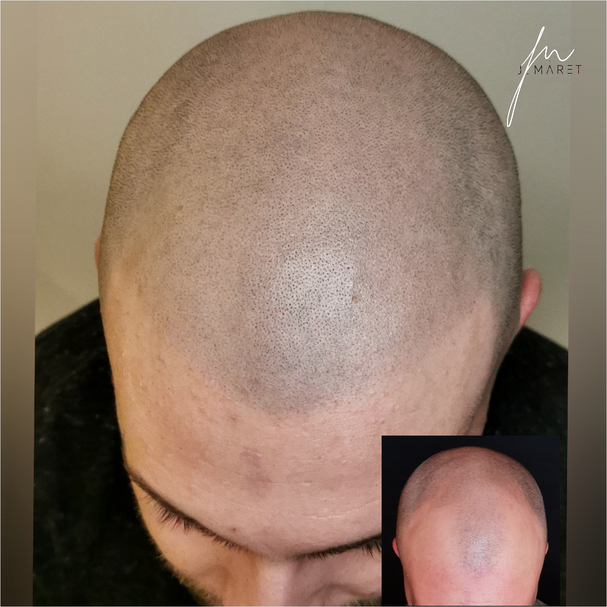 Projet 5Micropigmentation / Scalp Micro_6.png