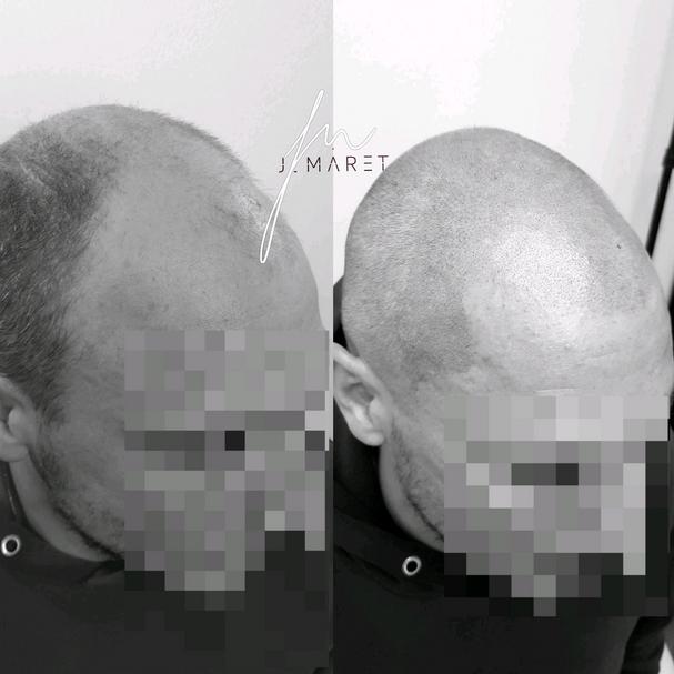 Micropigmentation / Scalp Micro