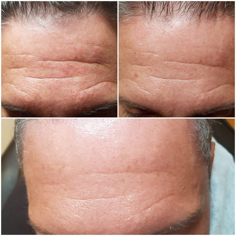 Consultation 30 min / Microneedling peau